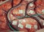 L'hypnose pour la chirurgie éveillée de certaines tumeurs du cerveau : une première au Chru de Tours