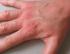 Hygiène des mains : plus de dermatites de contact irritative chez les professionnels de santé