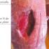 Cicatrisation : les plaies et leurs évolutions