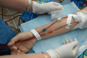 Recherche infirmière : Quelle technique de dialyse à domicile