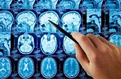 L'abus de benzodiazépines augmenterait le risque de maladie d'Alzheimer