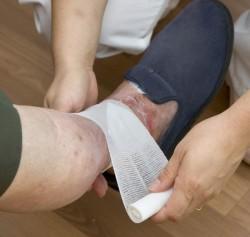 Ulcères veineux chroniques : la contention avant tout