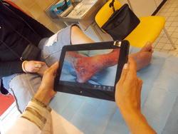 Domoplaies : la télémédecine en soutien des infirmières libérales