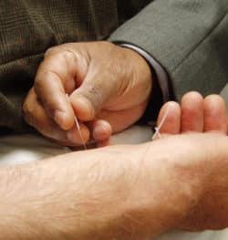 Acupuncture : une infirmière condamnée pour exercice illégal de la médecine