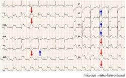 electrocardiogramme infarctus infero latero basal