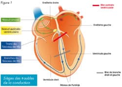 electrocardiogramme_troubles_conduction