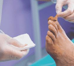 Les plaies du pied chez le diabétique