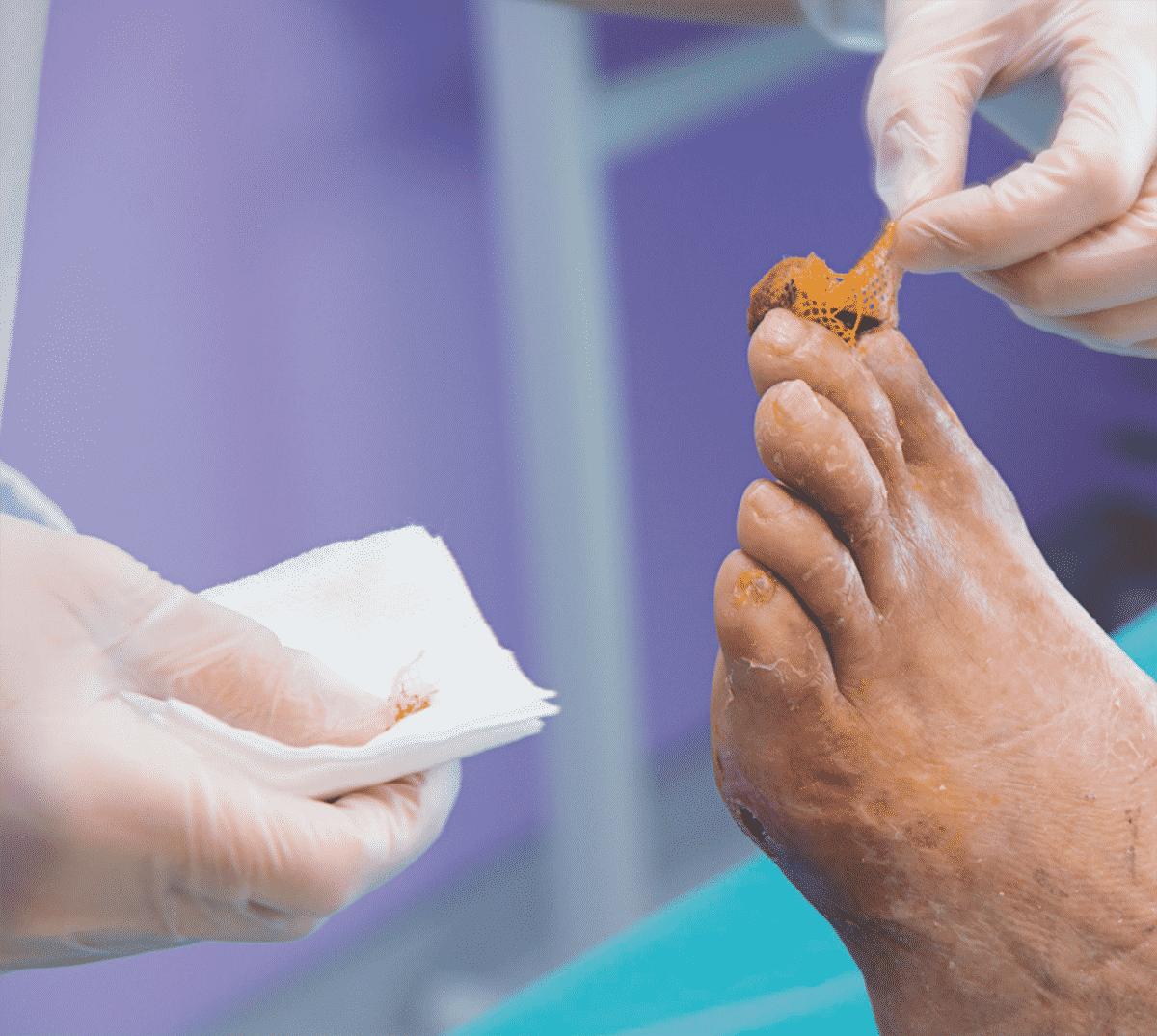 necrose pied diabetique