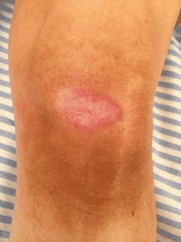 Cicatrisation des plaies : exsudative, nécrosée, fibrineuse ...