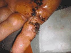 L'importance de la cicatrisation en milieu humide