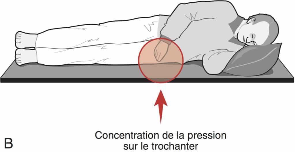 Escarre concentration de la pression sur le trochanter