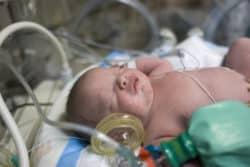L'ANDPE soutient l'appel de l'EFCNI à la mobilisation pour la santé du nouveau-né