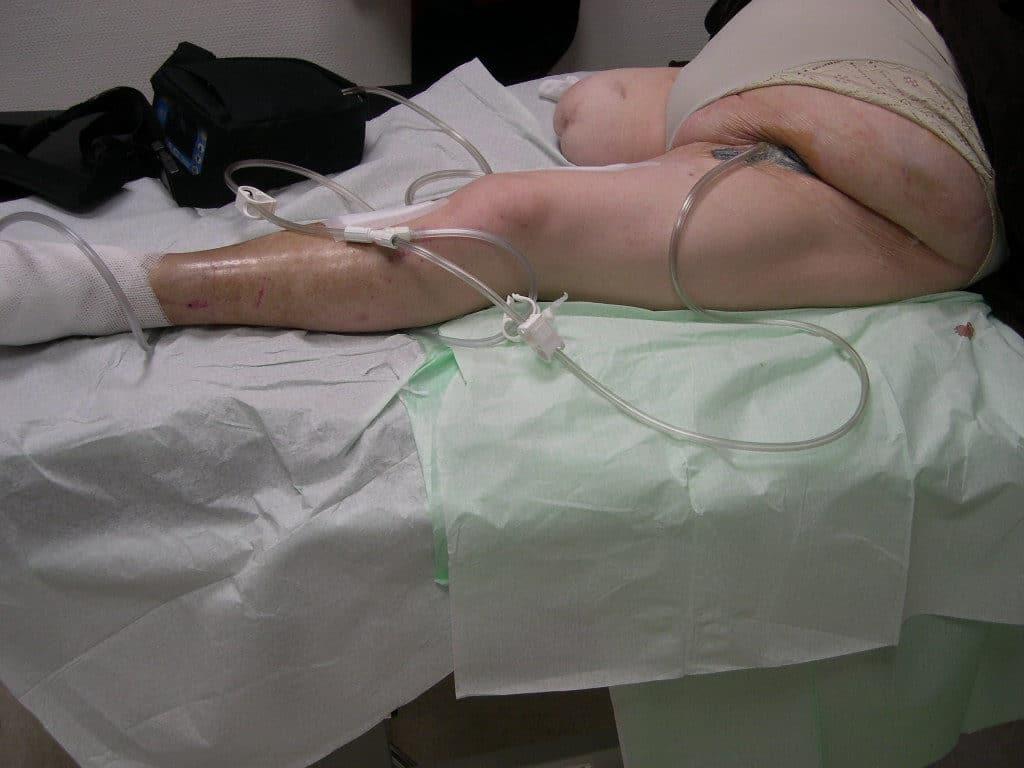 TPN Thérapie par pression négative plaies éloignées