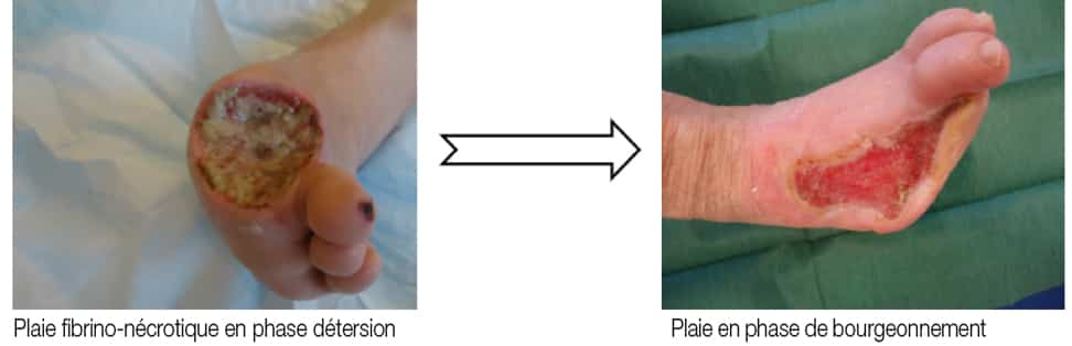 La détersion correspond à l'élimination des débris et des tissus inertes pour obtenir un milieu favorable à la cicatrisation