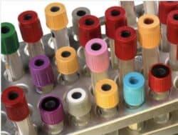 Covid-19 : des tests sérologiques proposés à tous les soignants la semaine prochaine