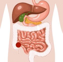 stomies digestives iléostomie