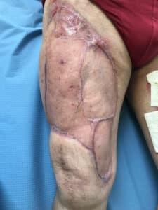 Greffe de peau demi-épaisse cicatrisée