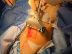 Prélèvement de greffe de peau simple avec dermatome.