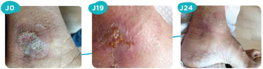 Ulcères de jambe veineux : Patiente de 76 ans présentant un ulcère datant de 1 mois