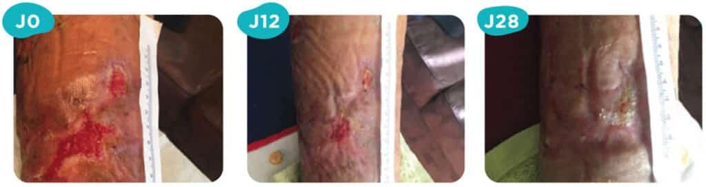 Ulcères de jambe veineux : Patiente de 83 ans présentant un ulcère datant de 10 mois